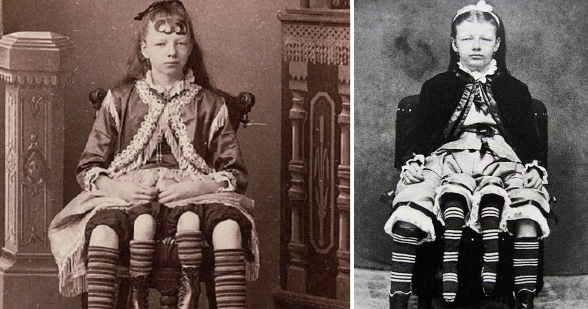 Myrtle Corbin Was A Four Legged Woman Who Had Five Kids Of Her Own