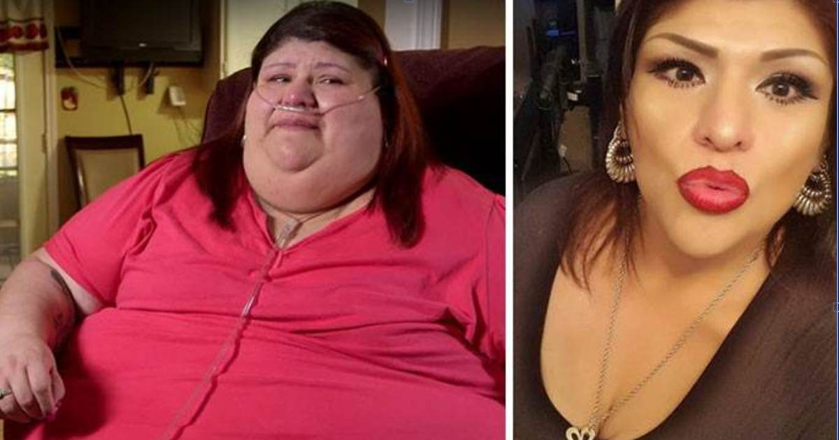 Amazing Before And After Weight Loss Photos From Women Who Were Morbidly Obese
