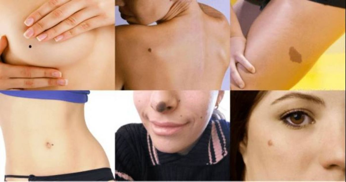 10+ Things That Have Been Revealed By The Position Of Your Birthmarks