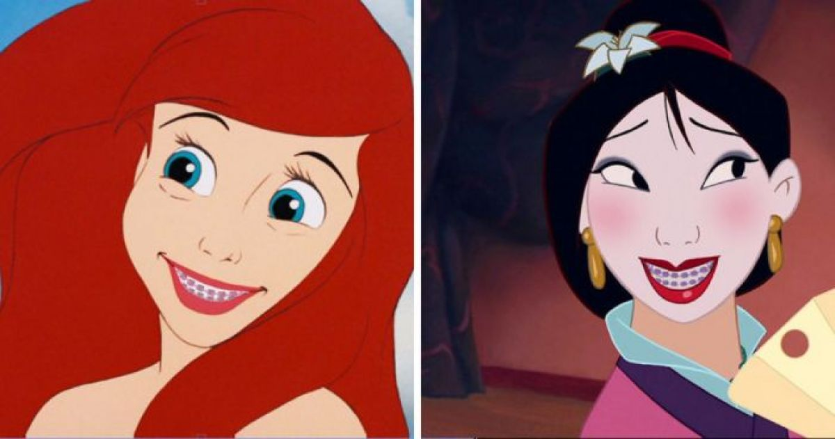 This Is How  Disney Princesses Would Look With Braces