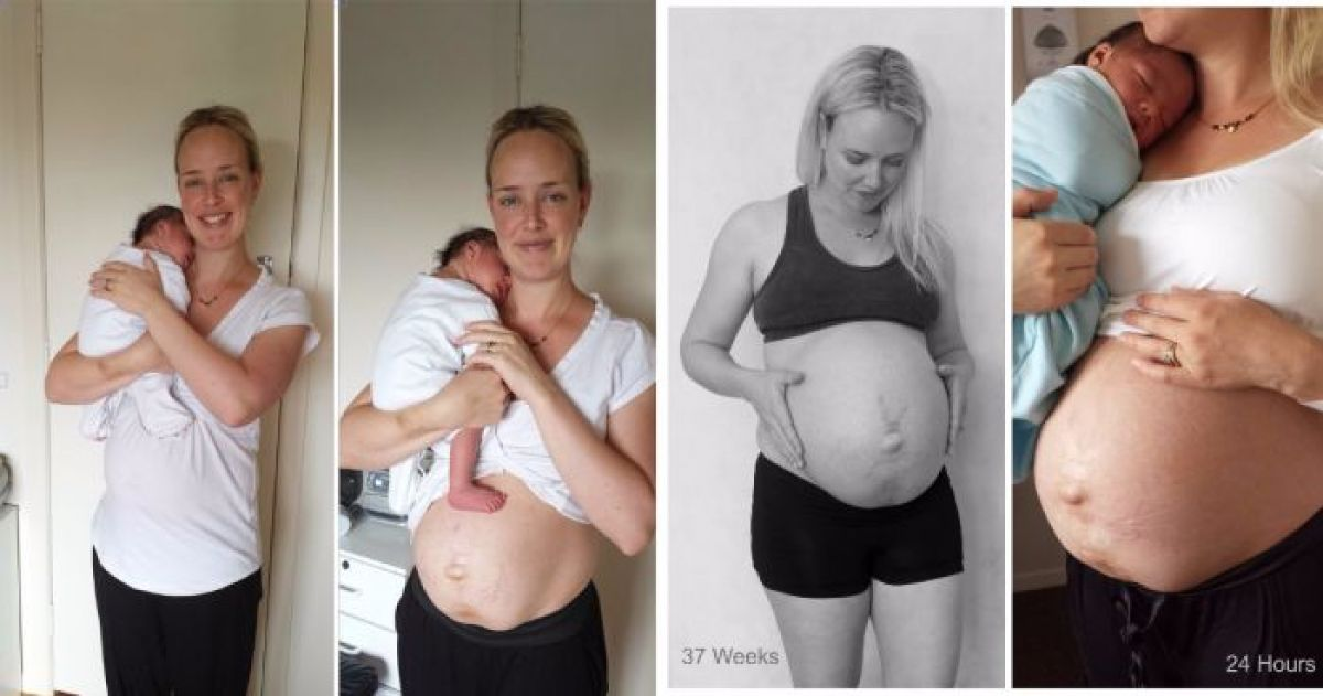 This Brave Mom Posted Photos of Her Body After Birth And It Couldn't Be More Raw And Realistic Than This